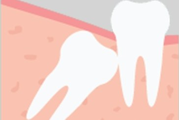 Cost of Extraction of Wisdom Teeth Removal and Tips to Reduce Them
