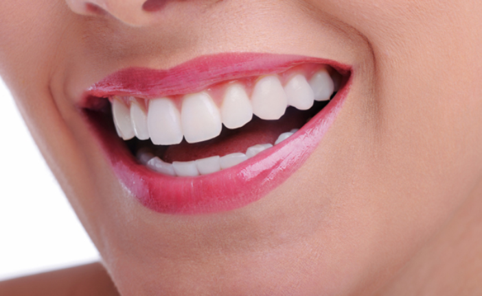 Cosmetic Dentistry – Different Types of Treatment
