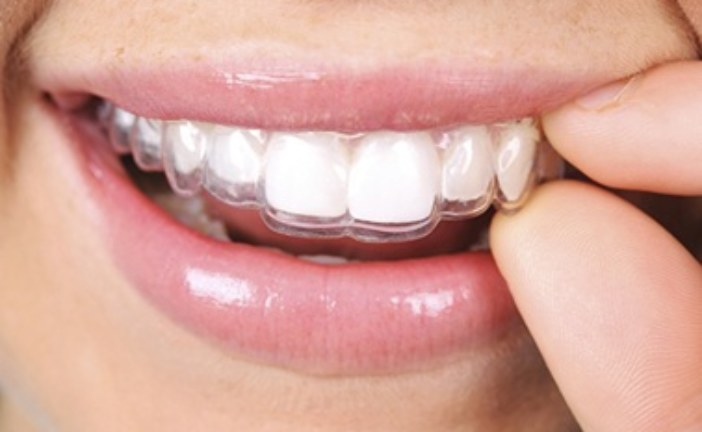 Invisible Brace Treatment – Aftercare Tips