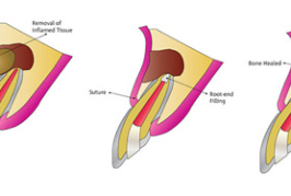 Apicoectomy – A Step Further than a Root Canal Treatment