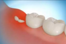 Cost Effective Solutions for Wisdom Teeth Removal in Sydney