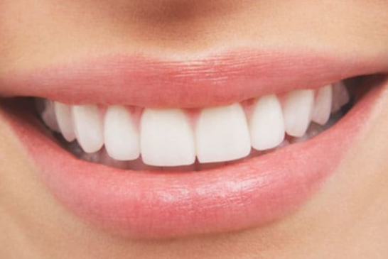 Show Off an Attractive Smile with Dental Veneers