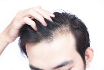 Hair Restoration 101: Choosing the Right Procedure for You