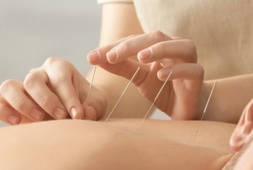 The advantages of following acupuncture for body care