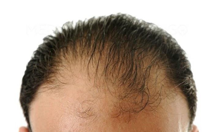 Criteria for Choosing Best Hair Transplant Surgeon in Jaipur