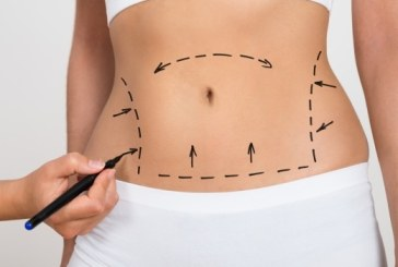 Liposuction; Uses and Benefits and Procedure