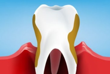 Check Periodontist In Phoenix and Learn About The Most Successful Treatments For Periodontal Disease