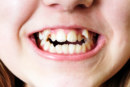 Have Crooked Teeth? What to Expect When You Visit the Orthodontist